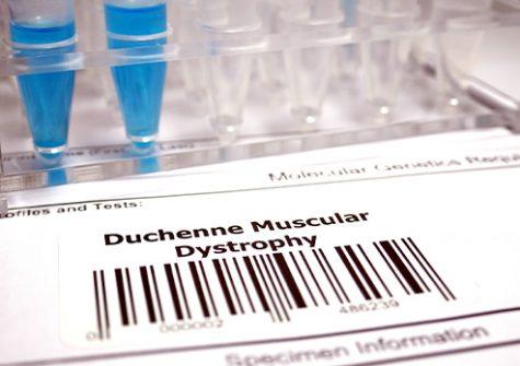 Généthon essai clinique myopathie Duchenne
