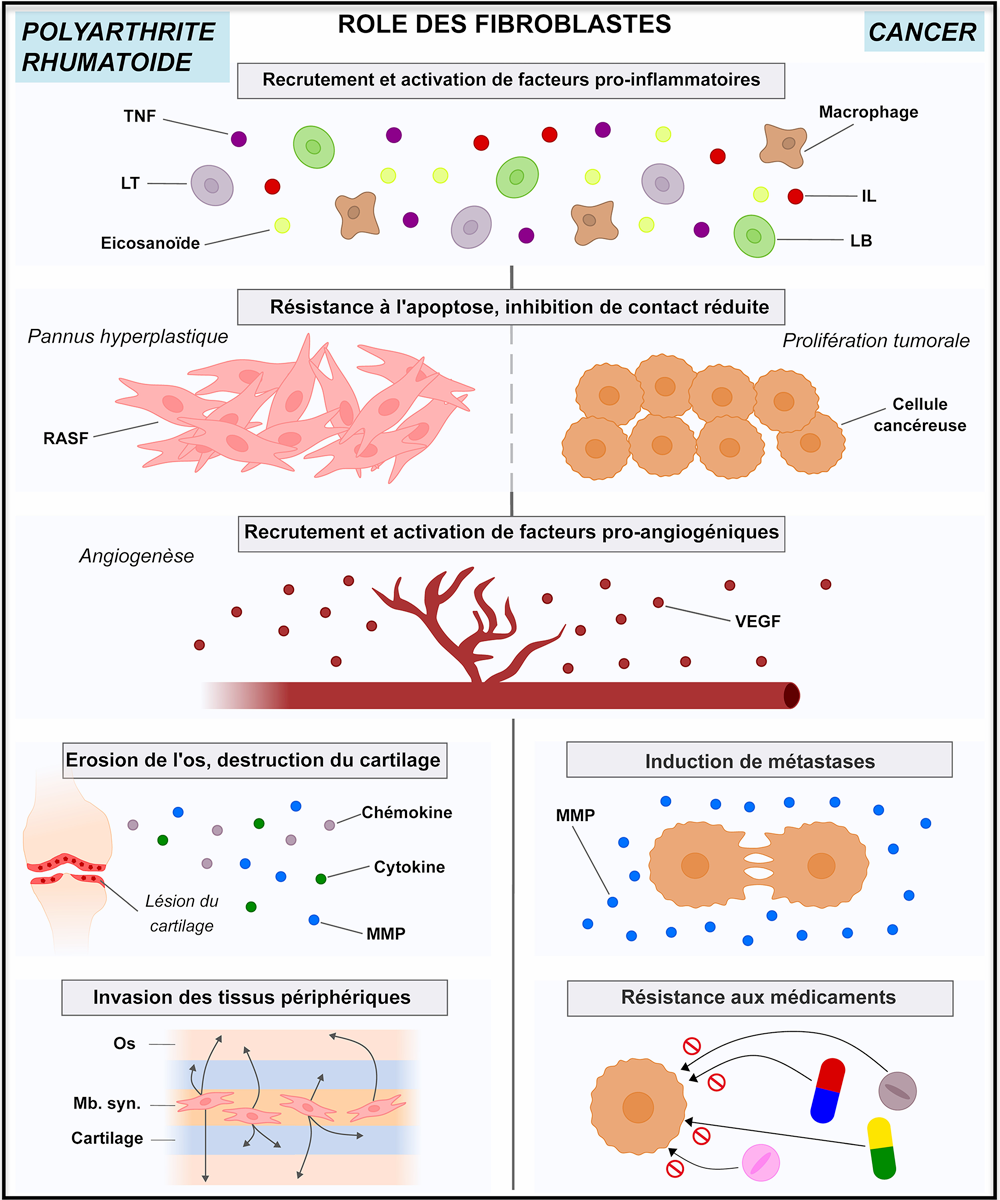 Role of fibroblasts in pathological processes and the progression of rheumatoid arthritis and cancer