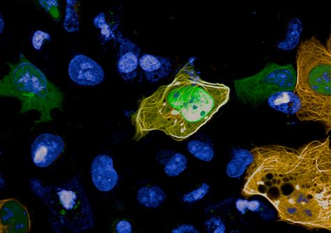 Visualisation et quantification par la technologie MTBench des interactions protéines-protéines, observées à l'Opera Phenix+ dans une lignée cellulaire.