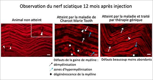 Illustration de l'injection sur le nerf - Test thérapie Génique - CMT