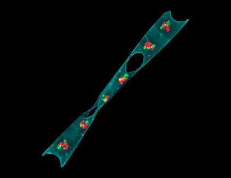 TARA © Sébastien Colin-Institut Max Planck de biologie du développement, Tübingen - Chaîne de cellules de diatomées (phytoplancton) avec des bactéries symbiotiques fixatrices d'azote à l'intérieur de chaque cellule.